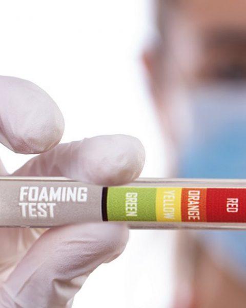 Testy z moču
